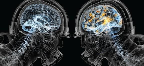 Исследователи обнаружили новый метод диагностики сотрясения мозга