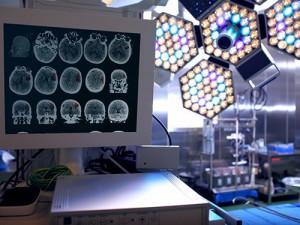 Сканирование головного мозга определяет, когда пациент выйдет из комы