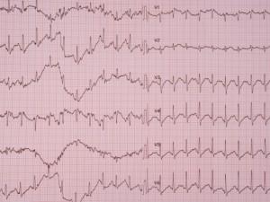 Ишемическая болезнь сердца: лечение и профилактика