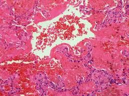 С-реактивный белок предскажет риск развития инфаркта