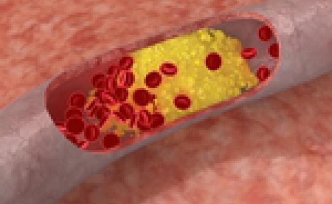 Атеросклероз: что нужно знать