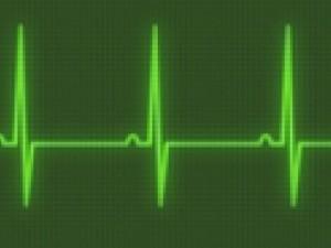 Брадикардия: причины замедления сердцебиения