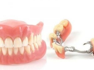Пластичные съемные зубы: верните себе белоснежную улыбку