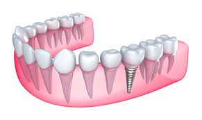 Эстетика в стоматологии – протезирование