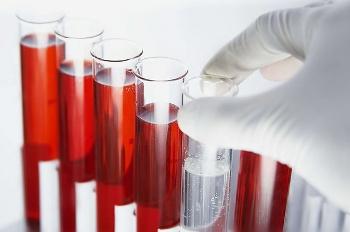Анализы на гормоны в лаборатории CMD