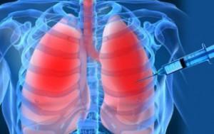 Биопсия легких. Как делают процедуру?