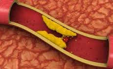 Высокий холестерин — угроза инфаркта