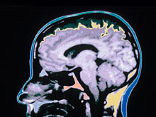 Полностью восстановиться после черепно-мозговой травмы невозможно, говорят эксперты
