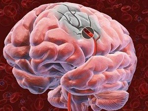 Выяснилось, как остановить повреждение мозга после инсульта