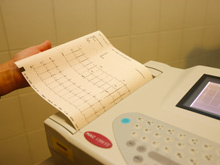 Электрокардиография поможет выявить эпилепсию у детей