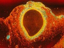 Возраст артерий напрямую связан с риском рака и болезней почек