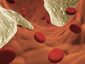 Гомоцистеин – новый фактор риска инфаркта миокарда