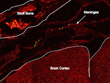 Кишечные бактерии способны предотвратить инсульт