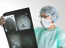 Специалисты призывают людей, перенесших микроинсульт, обращаться в больницу