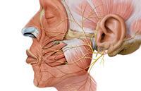 Как лечить паралич черепных нервов?