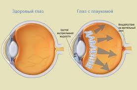 Как снизить глазное давление?