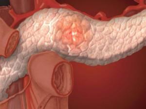 Панкреатит — болезнь образа жизни