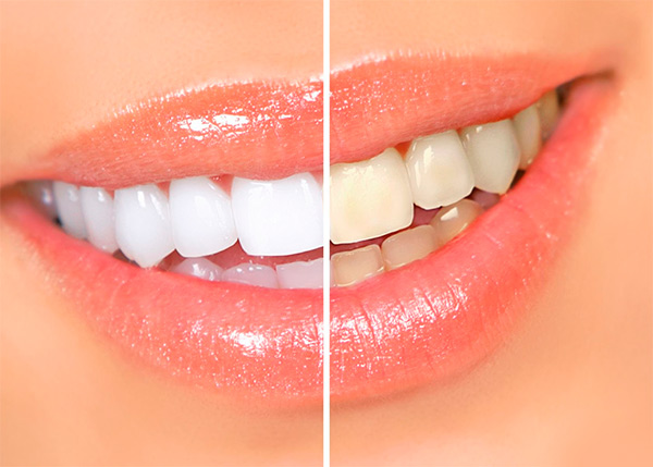 Как сохранить естественный цвет зубов