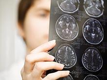 Ученые рассказали, почему у человека в процессе эволюции увеличился мозг