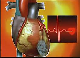Мерцательная аритмия с желудочковыми экстрасистолами