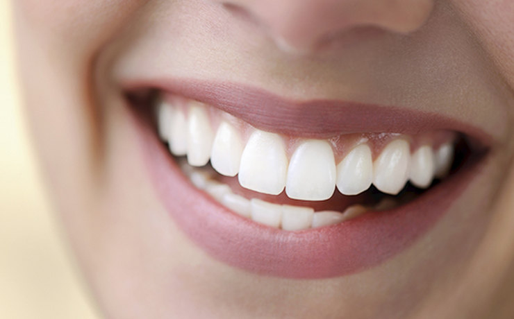 Что необходимо знать об отбеливании зубов