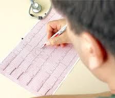Электрокардиографические критерии синусовой брадикардии
