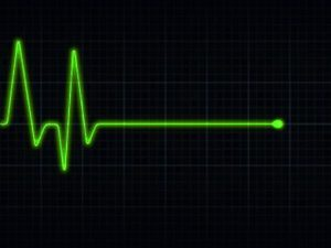Синусовую тахикардию при слиянии волн Р и Т