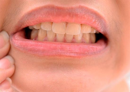 Эффективное снятие зубной боли с помощью средств народной медицины