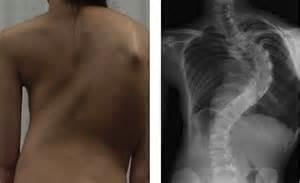 МРТ или рентген позвоночника — что лучше