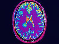 Лица, издевающиеся над другими, имеют особую мозговую активность, показал анализ