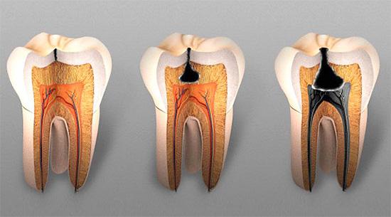 Кариес. Глубокий кариес лечит стоматология в Иркутске