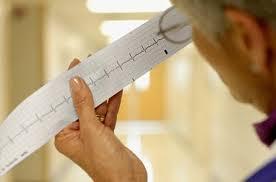 Электроимпульсное лечение при хроническом мерцании и трепетании предсердий