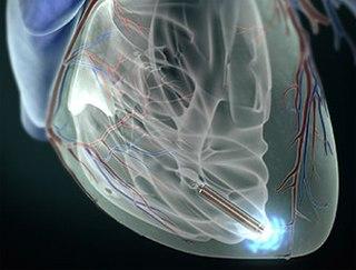 Трансвенозная или эндокардиальная электрокардиостимуляция