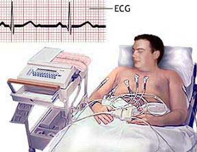 Искусственная электрокардиостимуляция