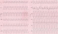 Электроимпульсное лечение при мерцании желудочков и трепетании желудочков