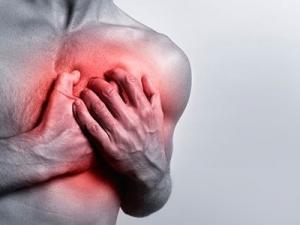 Спонтанная стенокардия