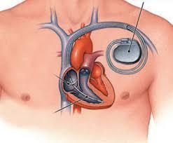 Электрокардиограмма при желудочковой электростимуляции сердца