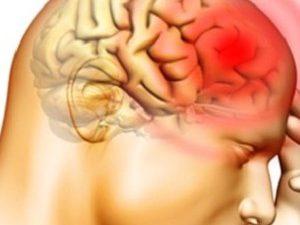 9 правил против инсульта