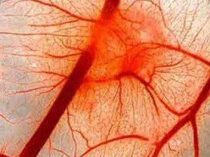 ТОП-7 несложных рецептов при болезнях сосудов