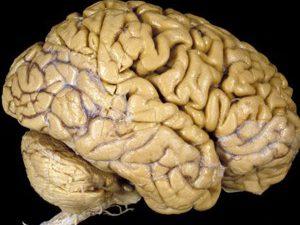 Стало известно, как стареет мозг человека