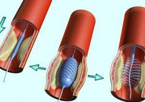 Как проходит операция по шунтированию сосудов сердца?