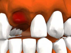 Альвеолит. Осложнение после удаления зуба
