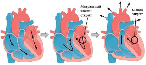 Пролапс митрального клапана (ПМК)