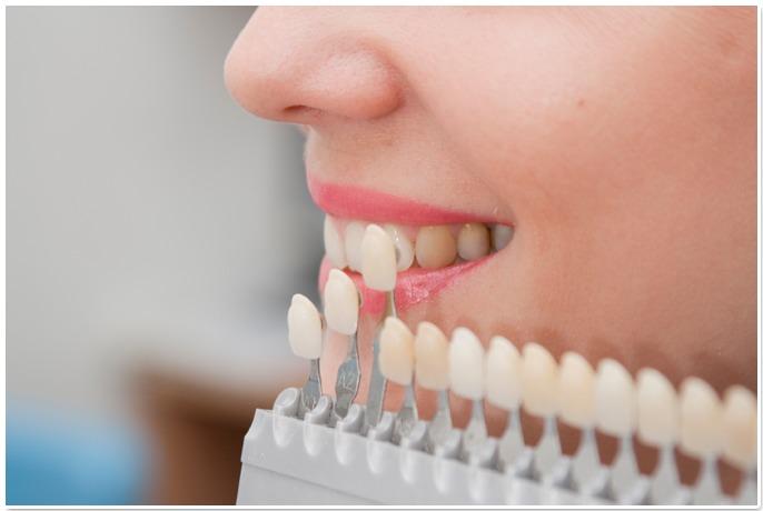 Методики восстановления зубов
