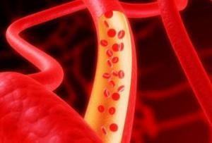 Состояние артерий напрямую связано с риском рака и болезнями почек