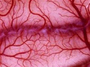 Высокие дозы парацетамола неэффективны при инсульте