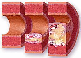 Атеросклероз аорты