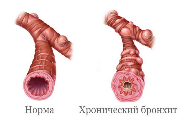 Бронхит. Симптомы и лечение