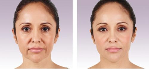 Juvederm Voluma — эффективное восстановление объема щек и устранение морщин