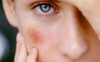 Покраснение сосудов на лице: как избавиться от сосудистой сетки на лице?